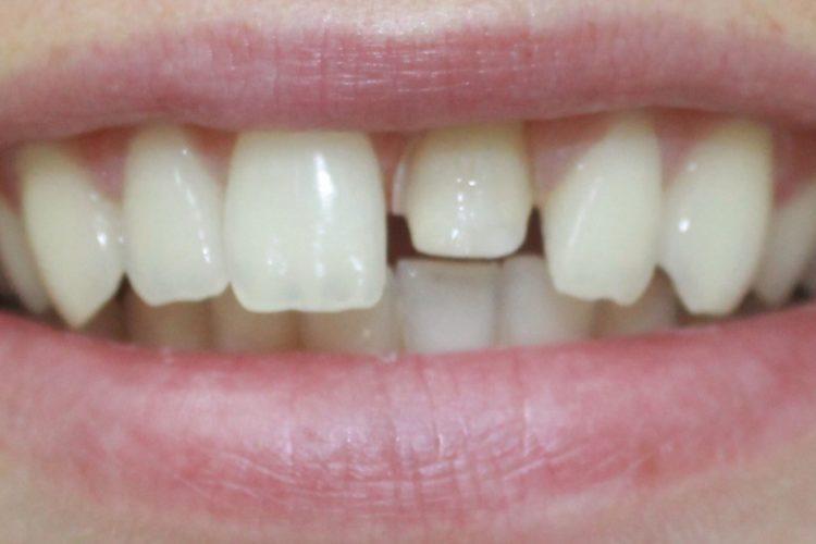 Ортопедическая стоматология ПраймДент: восстановление зубов