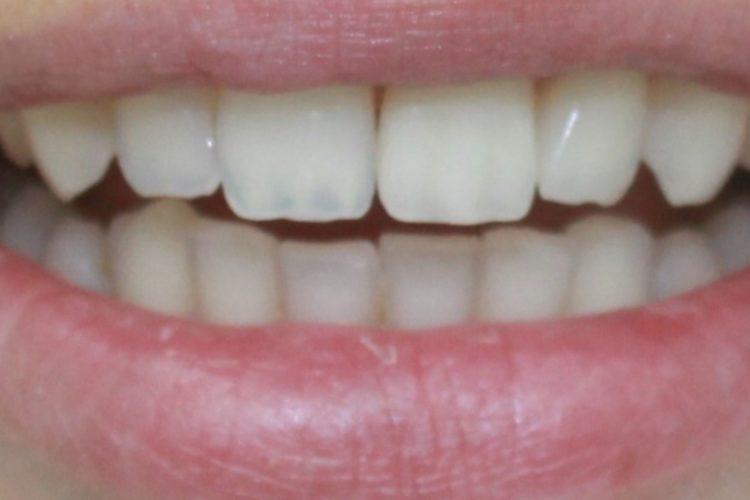 Ортопедическая стоматология в центре ПраймДент