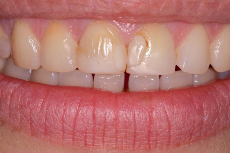 Стоматология ПраймДент - восстановление зуба