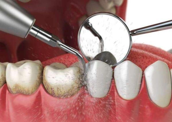 Профгигиена зубов